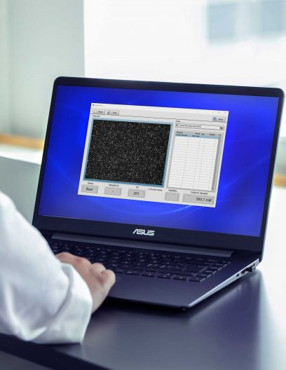 SemenView™ software on a laptop for cell count and viability analysis