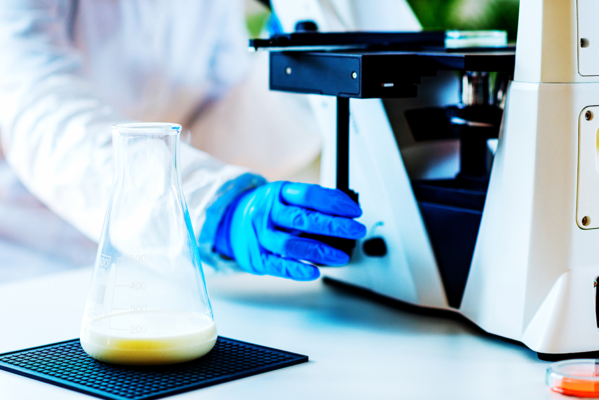 Somatic cell counting analysis from milk samples ensures dairy quality