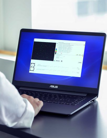 NucleoView™ software on a laptop for cell count and viability analysis