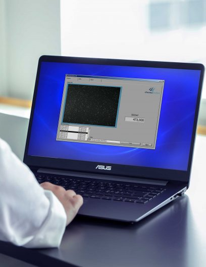 SomaticView™ software on a laptop for somatic cell count and viability analysis